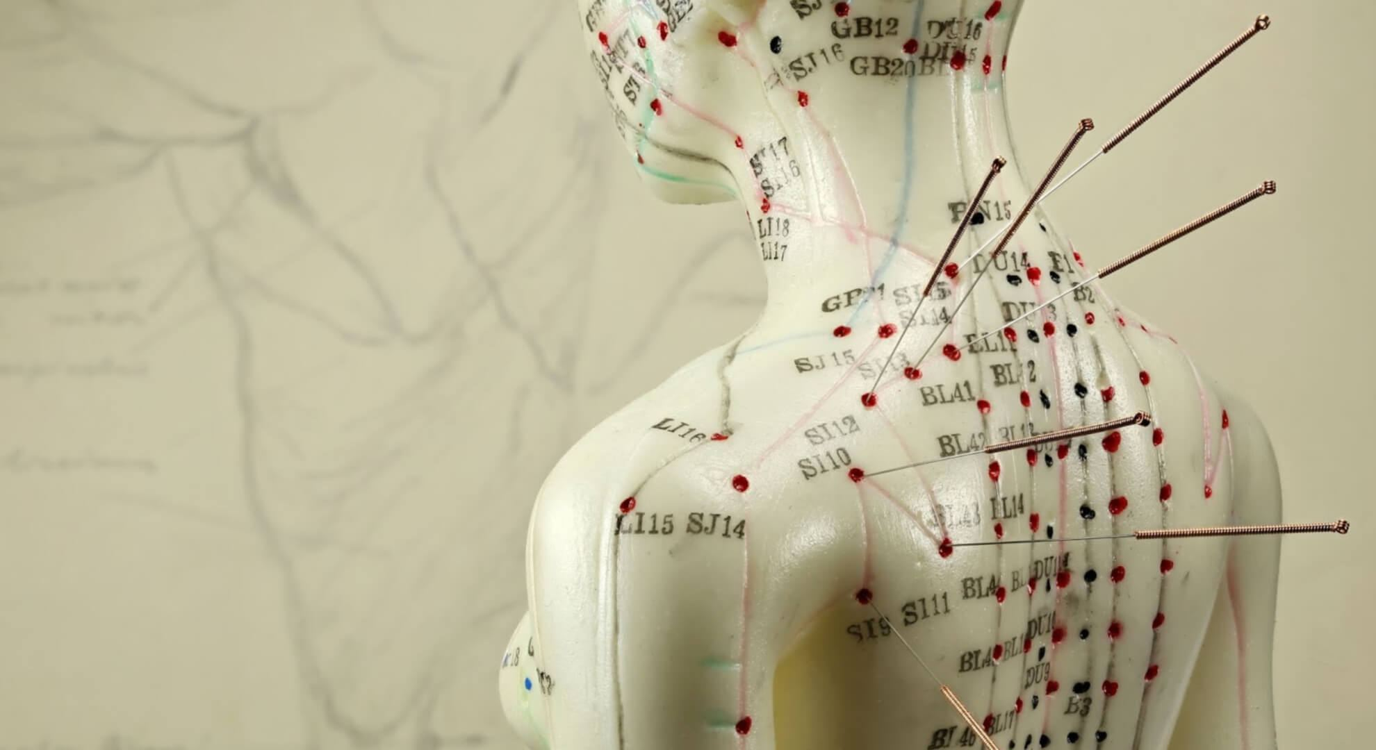 Acupuncture in Chinese medicine
